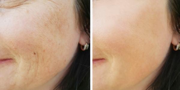 Naravni kolagen - povečuje elastičnost kože